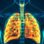Ex-Smoking COPD Patients Who Switched to Vaping Experienced Long-Term Benefits